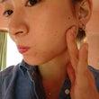 肌トラブル……チャン…