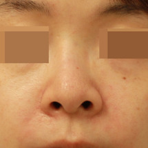 鼻修正手術:上下顎骨…