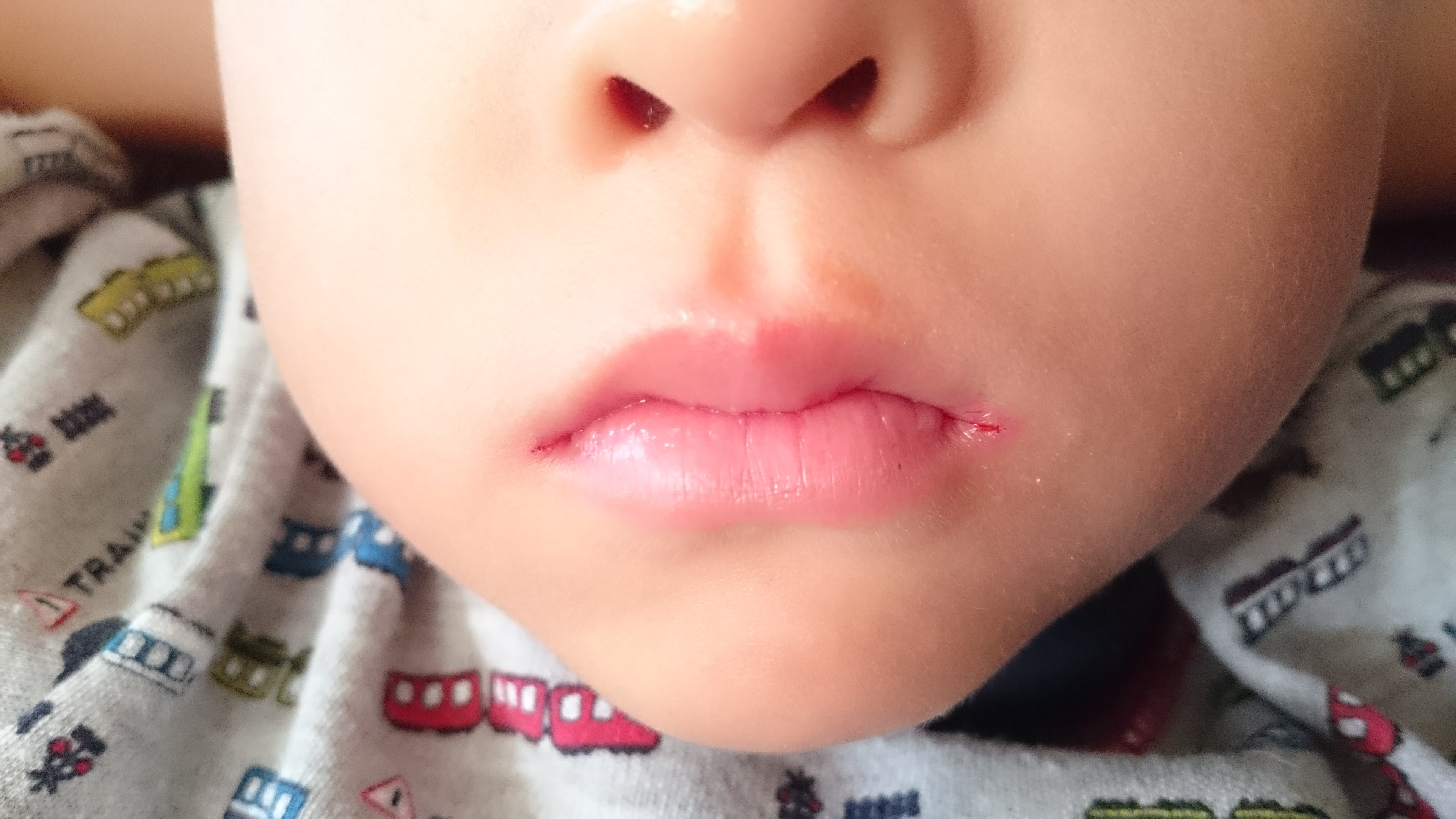 ない 治ら 口角 炎
