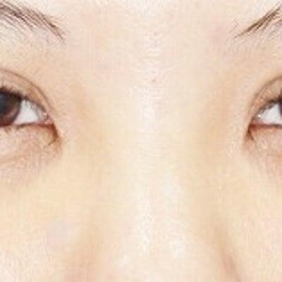 20代女性「切らない眼瞼下垂」手術後3日目の変化をご紹介いたします。の記事に添付されている画像