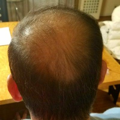 SUPER-MILLION-HAIRを試してみたの記事に添付されている画像