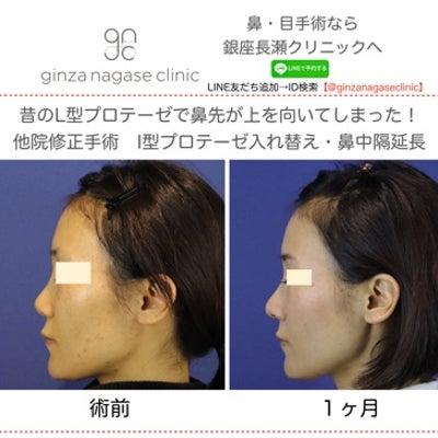 鼻手術の大間違い!の記事に添付されている画像