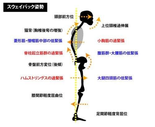 「スウェイバック姿勢 画像」の画像検索結果