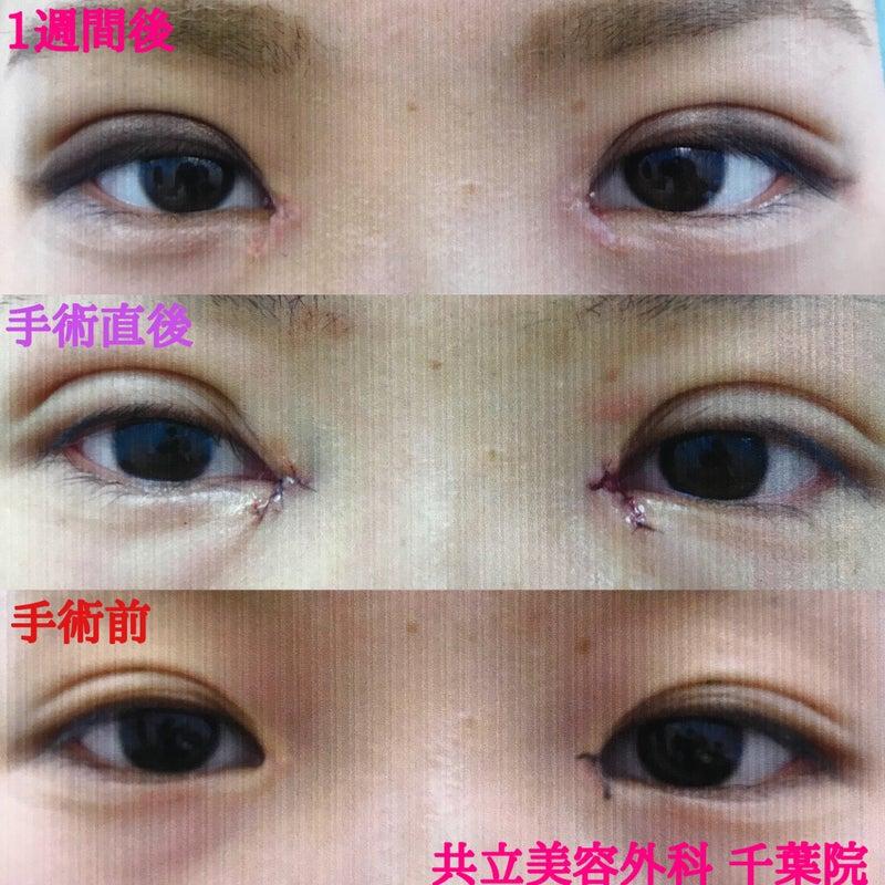 共立 美容 外科 ミラドライの効果について 再発に配慮して、失敗しないように治療。...