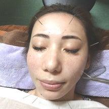 美顔の鍼が大流行りで…