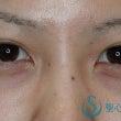 全切開法による重瞼術…
