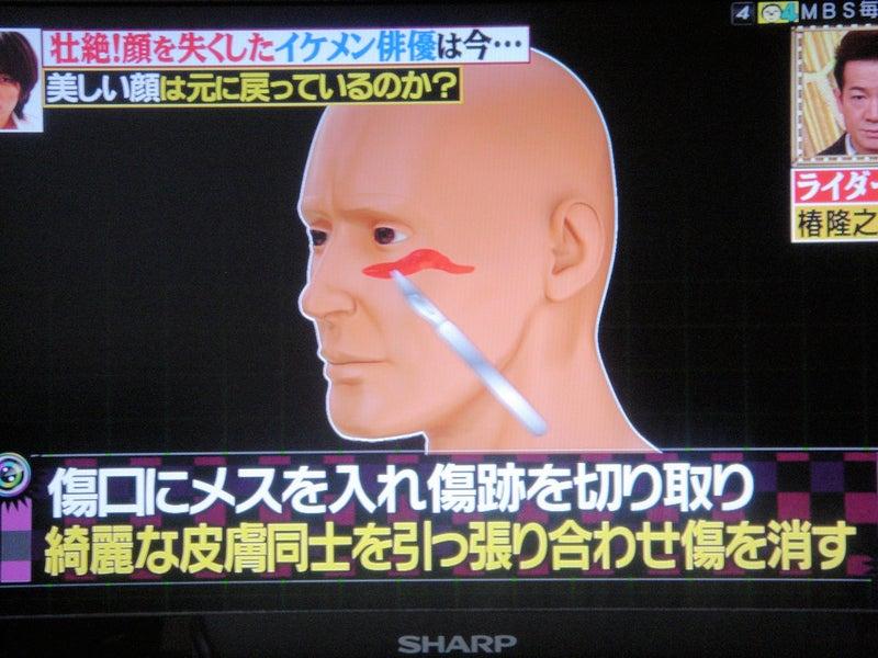 顔面形成手術とは