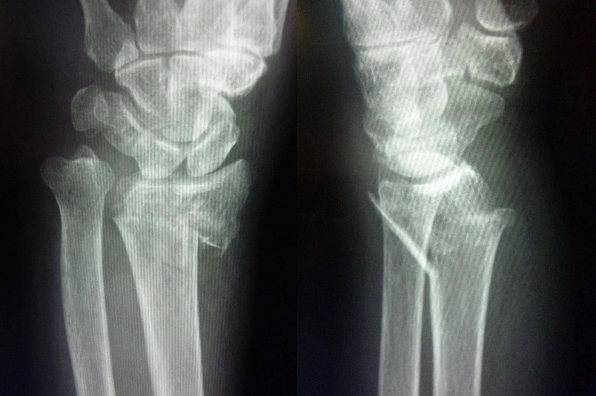 橈骨遠位端骨折、異常発生中 | ...