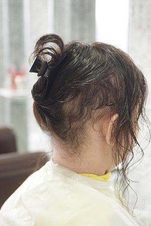 抜毛症だってお洒落は楽しめるんだよー31 大人抜毛最短復活。の記事より