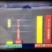 NHKスペシャル人体…