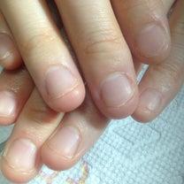 噛み爪 深爪でお悩みの方に 育成コース ~戸田市ネイルサロン リラネイル~の記事に添付されている画像