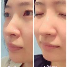 お鼻のヒアルロン酸・…