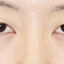 20代女性「切らない眼瞼下垂+目尻切開」手術後1ヶ月目の変化をご紹介いたします。の記事に添付されている画像