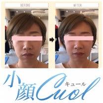 小顔1回目ビフォーアフターの記事に添付されている画像