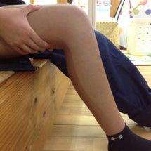 骨折の拘縮後療(固く…