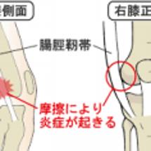 右ひざが痛い(>_<…