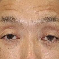 50代男性、「眉下切開法」手術直後の変化をご紹介致します。の記事に添付されている画像