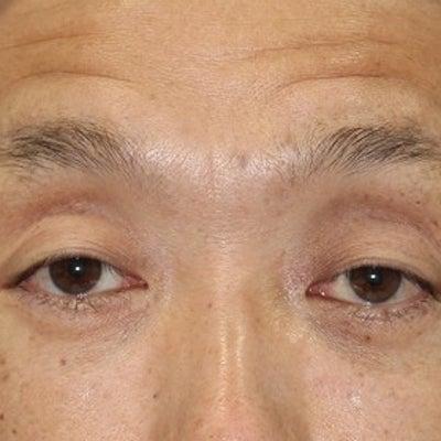 50代男性、「眉下切開法」手術後1週間目の変化をご紹介致します。の記事に添付されている画像