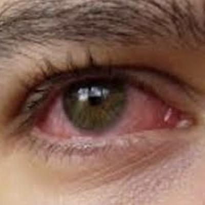 目の充血・ドライアイでお悩みならの記事に添付されている画像