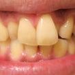歯の黄ばみの原因と対…