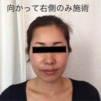 一回り小さい顔に♡小顔フェイシャル45分の結果の記事に添付されている画像
