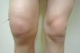 膝 の 水 が たまらない 方法