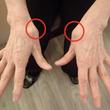 「母指CM関節症」の…