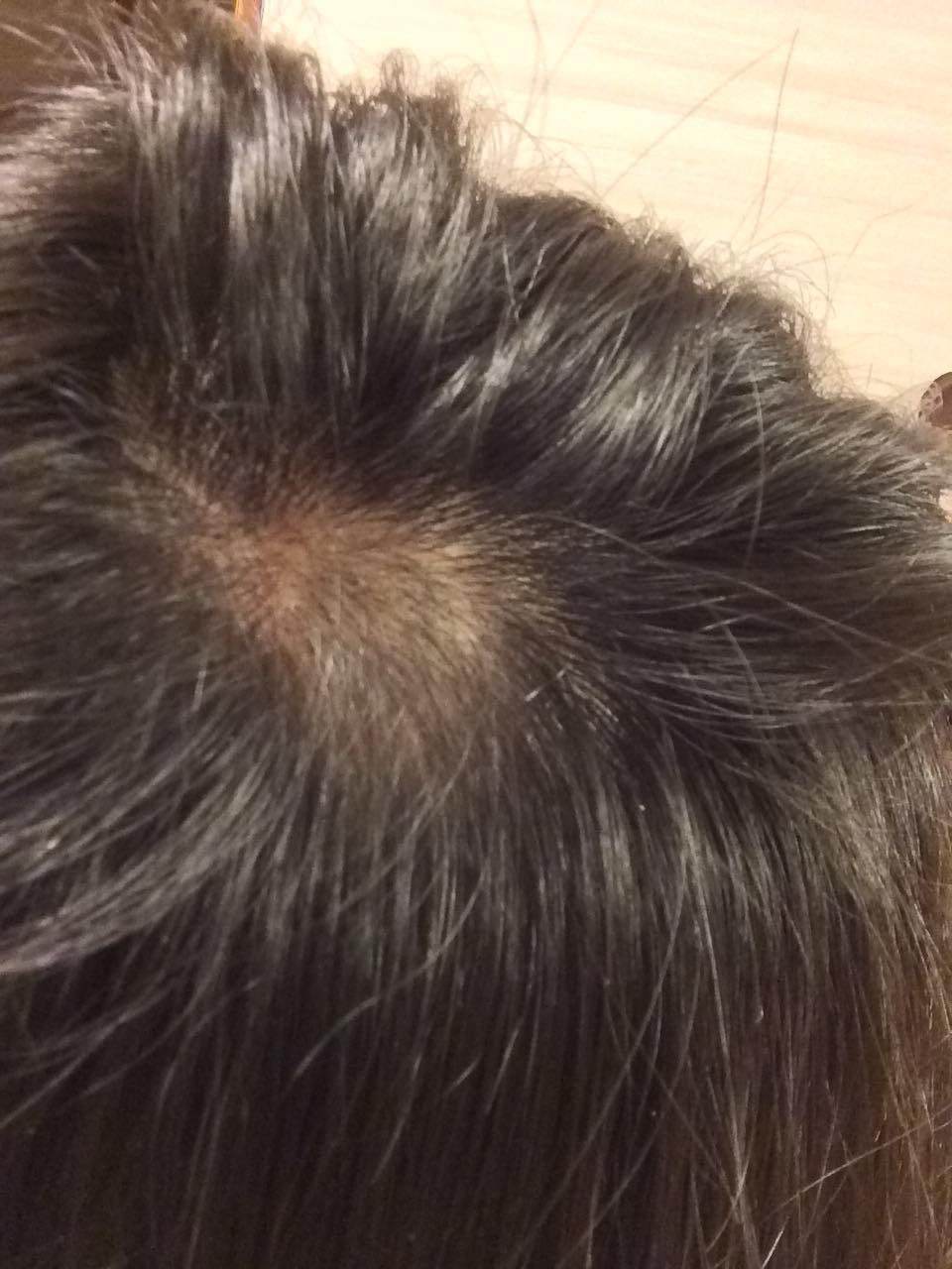 円形脱毛症にはりきゅうの記事より