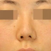 鼻尖部修正術:アップ…