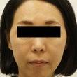42歳・女性 顔にヒ…