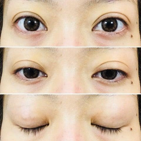 共立 美容 外科 共立美容外科