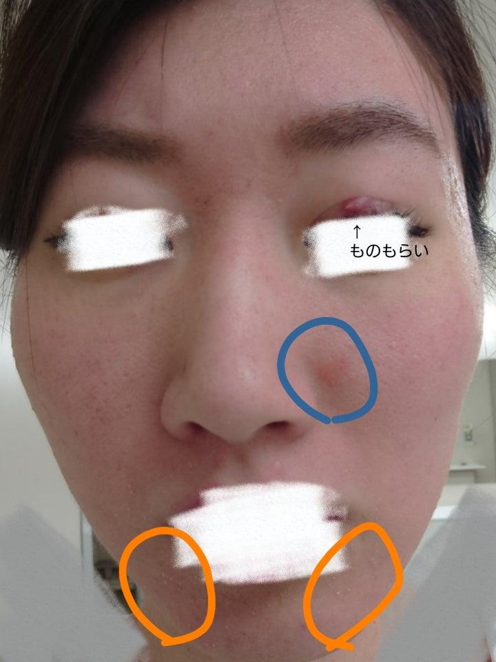 似て非なる脂漏性皮膚炎の記事より