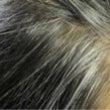 ★部分的な白髪は体調…