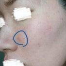 脂漏性皮膚炎の治る過程がおもしろい。の記事より