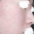 脂漏性湿疹は早期対処が肝心!!の記事より
