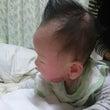 乳児湿疹の完治とは……