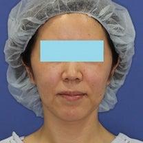 40代女性「ミントリフトⅡminiS flex(シークレットリフト)24本」手術の記事に添付されている画像