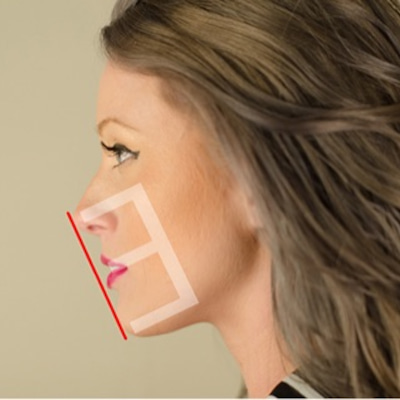 歯の裏側矯正【写真】痛いし期間もかかるけど顔が変わるの記事に添付されている画像