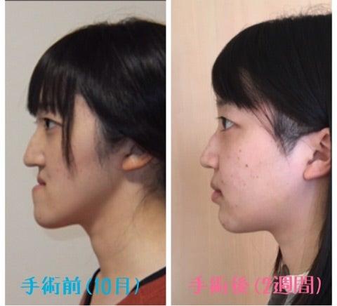 手術 ブログ 顎 変形 症