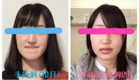 変形 ブログ 顎 症 手術