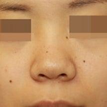 鼻尖形成術:誰にも気…