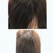 増毛|前髪を増やした…