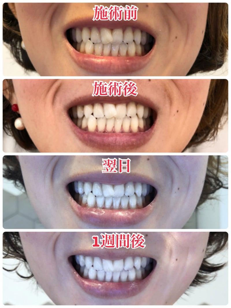 白く 歯 歯磨き粉 が なる 「歯を白くするホワイトニング歯磨き粉」歯科衛生士が選ぶランキング