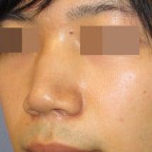 鼻 修正手術:鼻中隔…