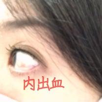 36w4d〜白目の内出血〜の記事に添付されている画像