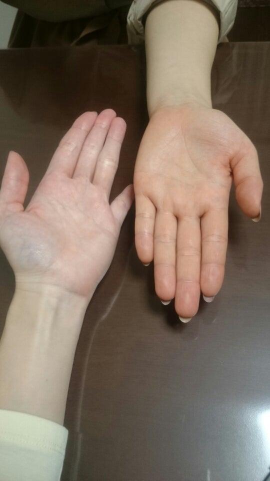 ブルベイエベ 診断