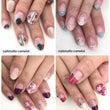 深爪改善 爪噛み予防…