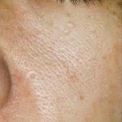 毛穴ケア②過剰な皮脂分泌による毛穴の開き♡の記事に添付されている画像