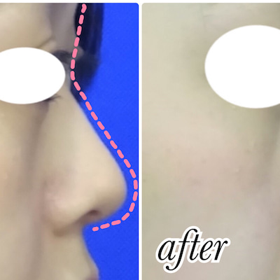 鼻のヒアルロン酸注射(ラインフィールウルトラ)をされた患者様をご紹介いたします♪の記事に添付されている画像