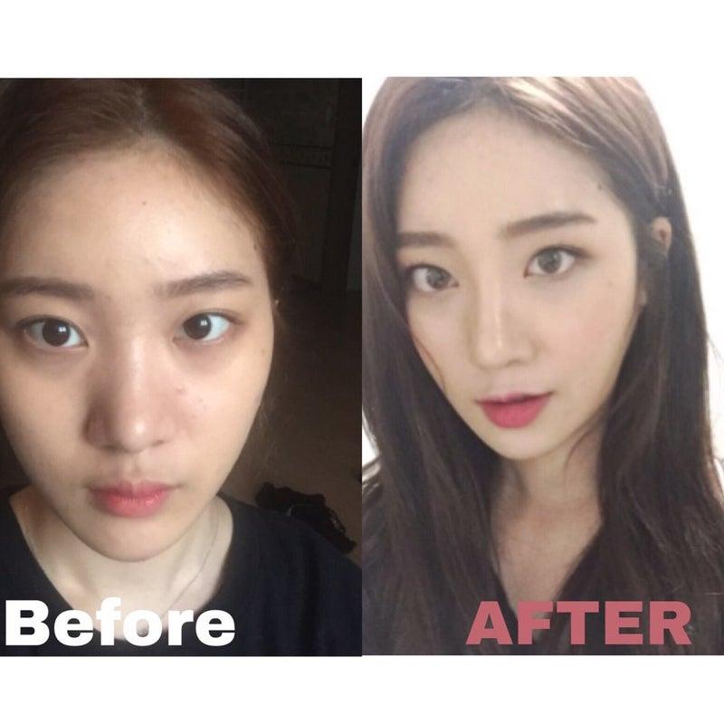 鼻 整形 バレ ない 鼻の整形がバレない方法!韓国美容クリニックの「ばれない鼻整形」を...